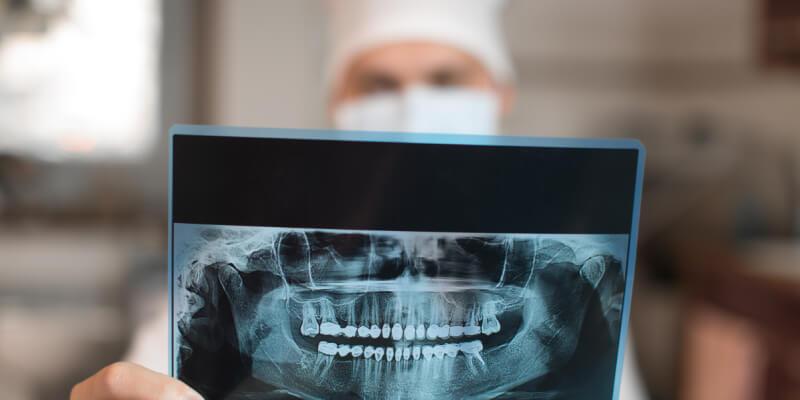Minimaliai invazyvi dantų implantacija