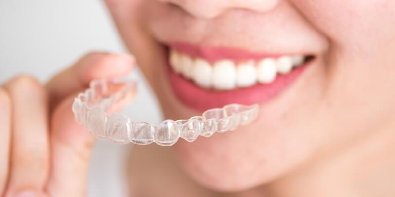 Ortodontinis gydymas kapomis airnivol sistema