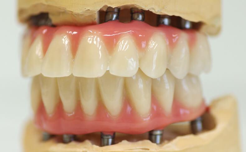 Dantų protezavimas ant implantų. Bedančiai žandikauliai