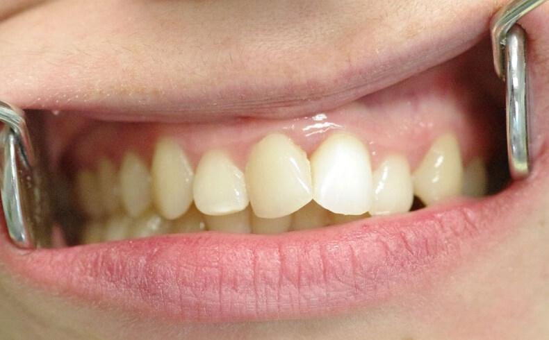 Estetinis dantų protezavimas keramikos laminatėmis