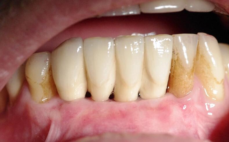 Kaulo augmentacija – priauginimas. Protezavimas ant implantų